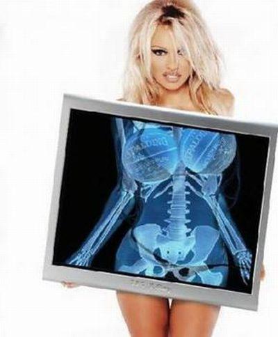 Самые смешные рентгеновские снимки