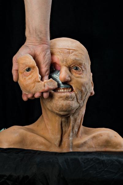 Модель, демонстрирующая титановую пластину в голове пациента, которому вместе с опухолью пришлось удалить скулу, верхнюю челюсть и правый глаз. Инженеры создали имплантат по образцу отсканированной здоровой части лица. Источник: Жан де Кюбер.