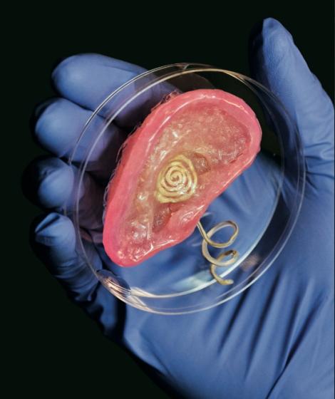 Бионическое ухо, распечатанное учеными из Принстонского университета. В качестве «чернил» использовались силикон и клетки хрящевой ткани. Металлическая катушка принимает электрические импульсы и передает их слуховому нерву. Источник: Майкл Макалпин, Принстонский университет. Автор: Франк Войчеховски